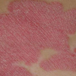 small dry patches on skin
