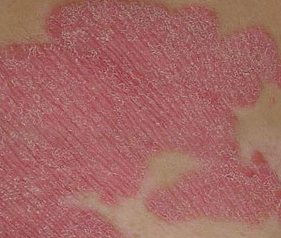 Small Dry Patches On Skin It Might Be Psoriasis