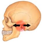 tmj subluxation