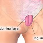 testicular hernia